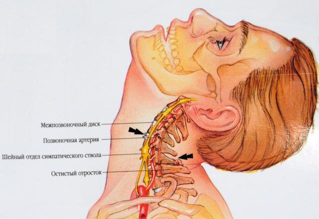 Перелом шеи: симптомы, первая помощь и лечение