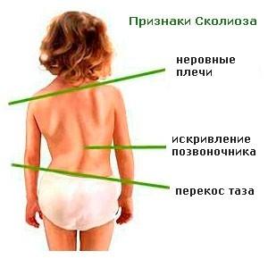 Мануальная терапия при 1, 2 степени сколиоза