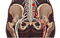 Люмбоишиалгия: симптомы, диагностика и лечение заболевания