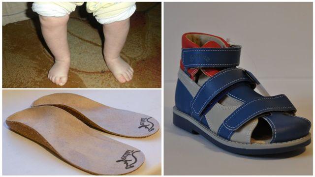 Ноги колесом у ребенка: причины и что делать
