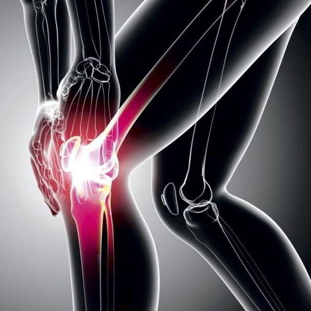 Рентген коленного сустава: что показывает и как проводят