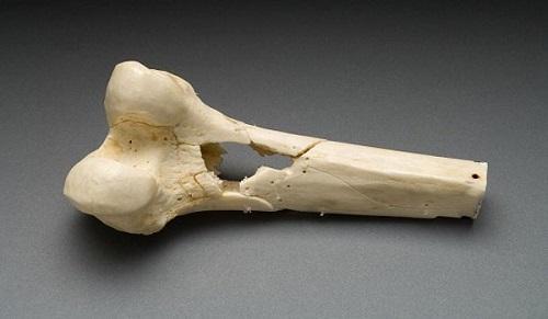Фиброзная дисплазия большой берцовой кости. Фиброзная дисплазия костей ног
