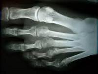 Болезнь Дойчлендера - причины, симптомы, диагностика