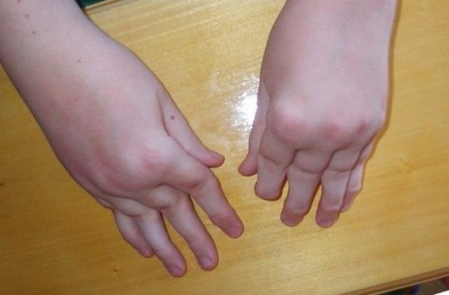Артрит у детей: причины, симптомы, лечение