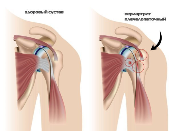 Периартрит плечевого сустава: симптомы, причины и лечение