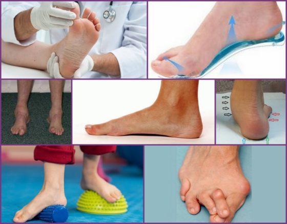 Плоскостопие: причины, симптомы, лечение, степени