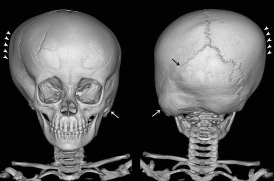 Синостоз костей: причины, виды, диагностика и лечение