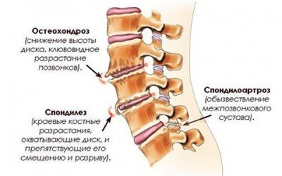 Артроз сустава Крювелье (спондилоартроз шейного отдела): симптомы, лечение, рентген щели