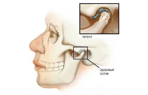 Артроз челюстно-лицевого сустава: симптомы и лечение