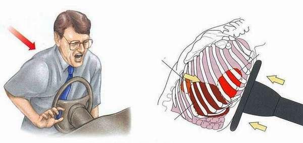 Перелом грудины: симптомы, первая помощь и лечение