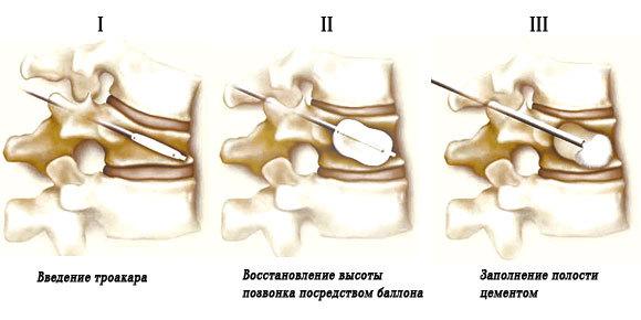Гиперкифоз позвоночника: причины, симптомы, лечение