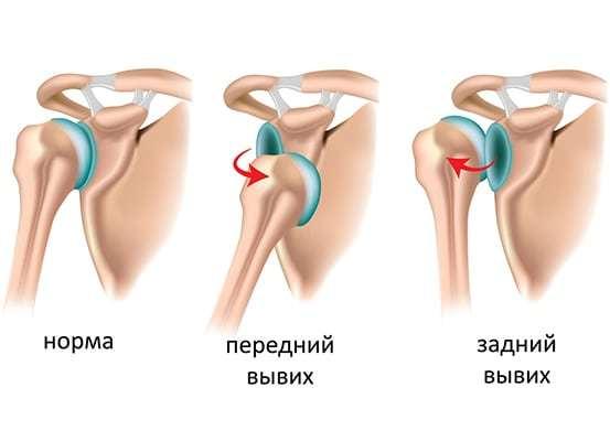 Причины нестабильности плечевого сустава и лечебные меры