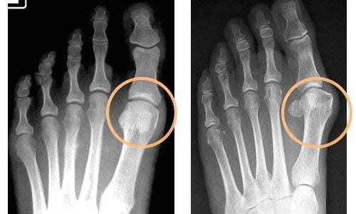 Народные средства для лечения подагры на ногах