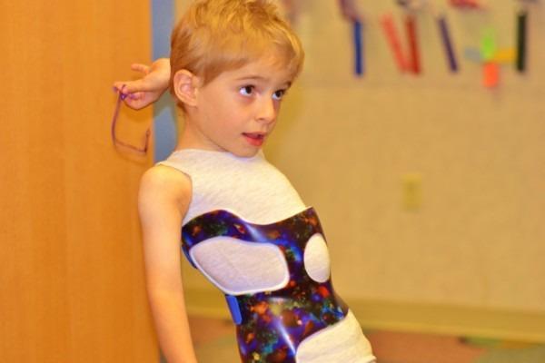 Сколиоз у детей: причины, диагностика и лечение