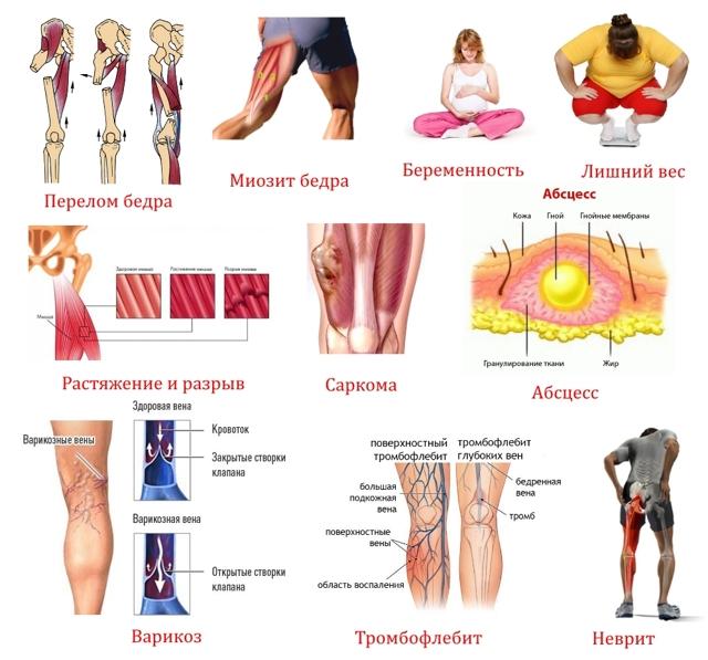 Болит нога от бедра до колена: причины и лечебные меры