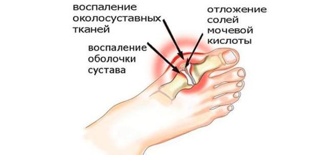 Эффективное лечение подагры с помощью уколов
