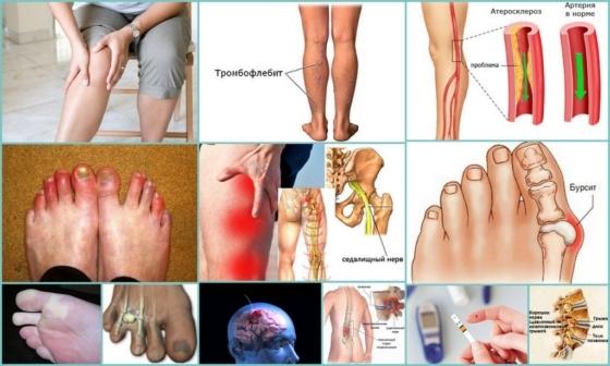 Немеют пальцы на ногах: причины и лечебные меры