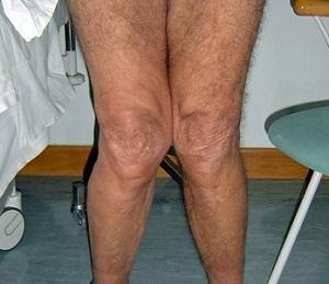 Артроз коленного сустава: причины, симптомы и лечение