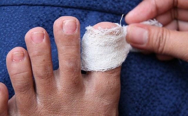 Ушиб ногтя на руке и ноге: что делать, чем лечить