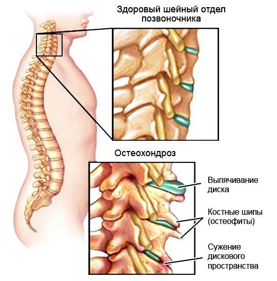 Остеохондроз 1,2 и 3 степени шейного отдела: особенности проявления