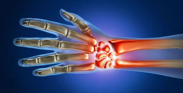 Стилоидит лучезапястного сустава: симптомы и лечение