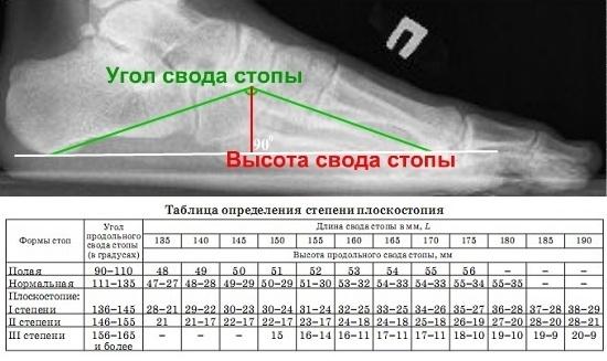 Рентген ноги: что показывает процедура и как ее делают