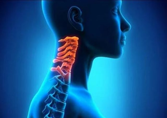 Синдром Клиппеля-Фейля: фото, причины, лечение и симптомы