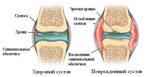 Хрустят суставы по всему телу: причины и лечение
