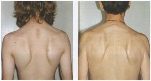 Плоская спина: причины, признаки, лечение, фото