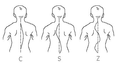 Сколиоз 4 степени: причины, признаки, фото, лечение