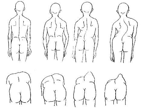 Реберный горб: причины, особенности лечения, фото