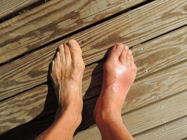 Почему немеет большой палец на ноге и что делать