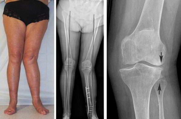 Воспаление суставов ног: причины, симптомы и лечение