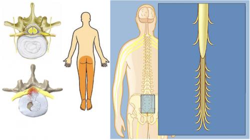 Антелистез: причины, симптомы, лечение, диагностика