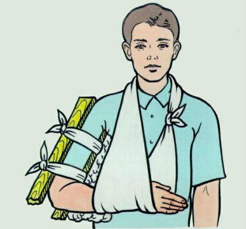Перелом плечевой кости: причины, симптомы, лечение