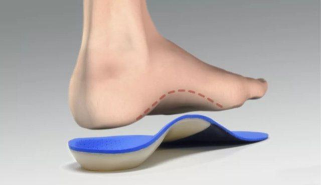 Ортопедические стельки при плоскостопии — как выбрать