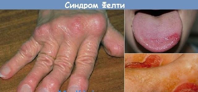 Синдром Фелти — причины, симптомы, лечение и диагностика