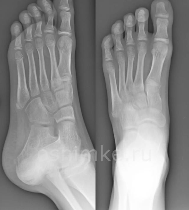 Рентген стопы — фото, показания и проведение