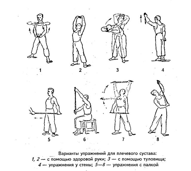 Болит плечо при поднятии руки: причины и лечение