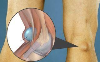 Киста Бейкера колена: лечение в домашних условиях