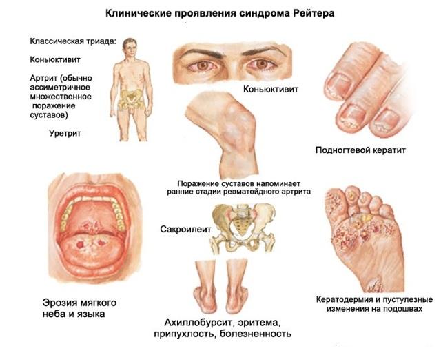 Виды артритов и их диагностика