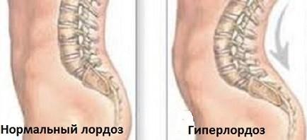 Гиперлордоз позвоночника: причины, симптомы, лечение