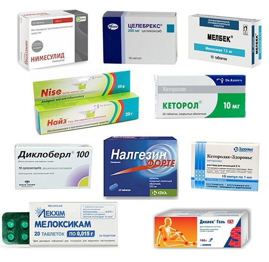 Перечень таблеток от артроза суставов