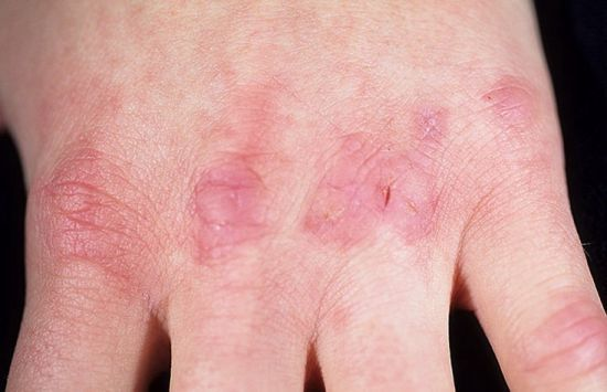 Шишки на пальцах рук: лечение народными средствами