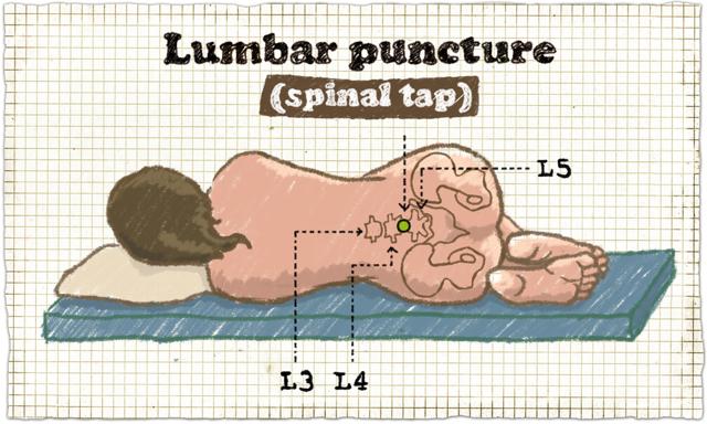 Люмбальная или спинномозговая пункция: подготовка и проведение