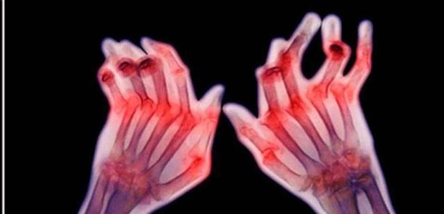 Серопозитивный ревматоидный артрит: лечение, причины, симптомы