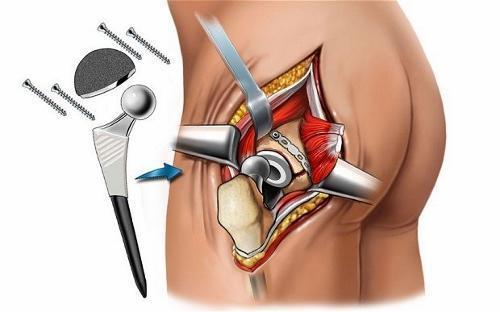 Артролиз — показания к операции и виды метода