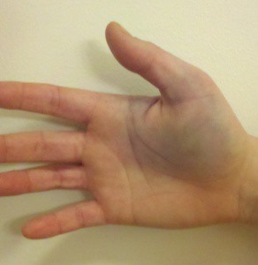 Перелом пальца на руке: симптомы, первая помощь и лечение
