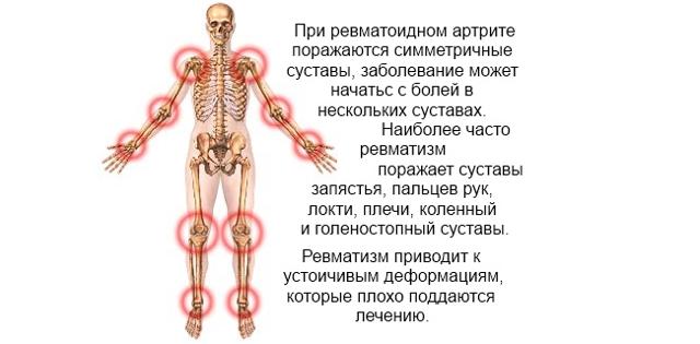 Лопух для лечения суставов - лечебные свойства и применение