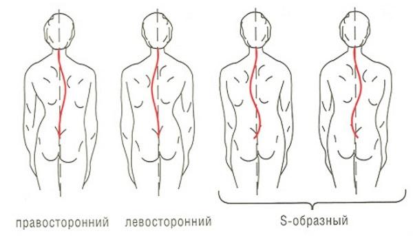 Сколиоз поясничного отдела позвоночника — лечение, причины